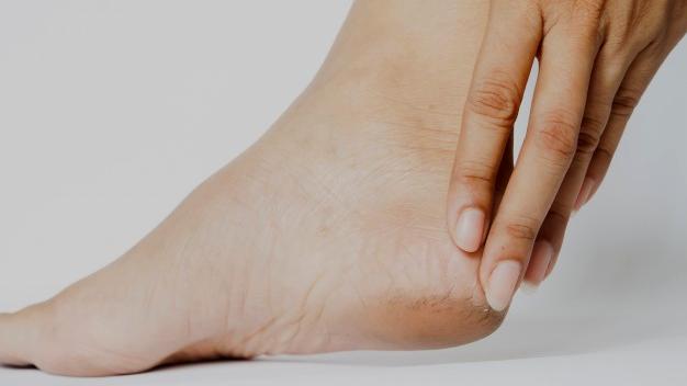 ¿Talones secos y agrietados? causas, consejos y solución definitiva para la piel de tus pies